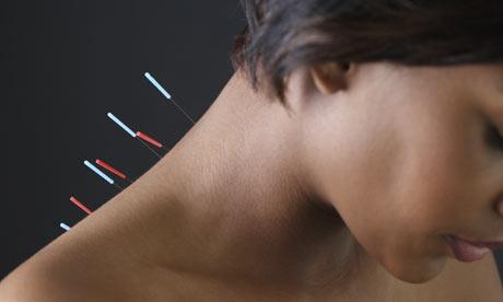 Acupuncture 2