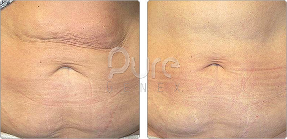 Skin tightening abdomen